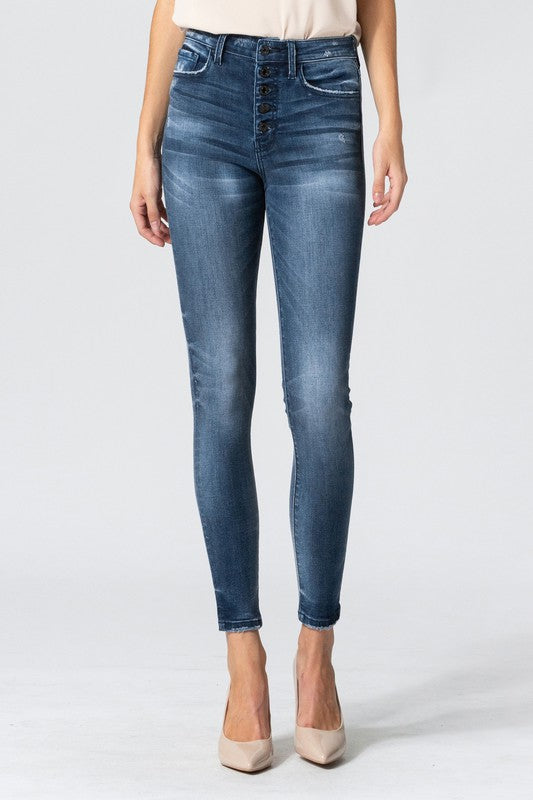 High waist exposed button skinny jean