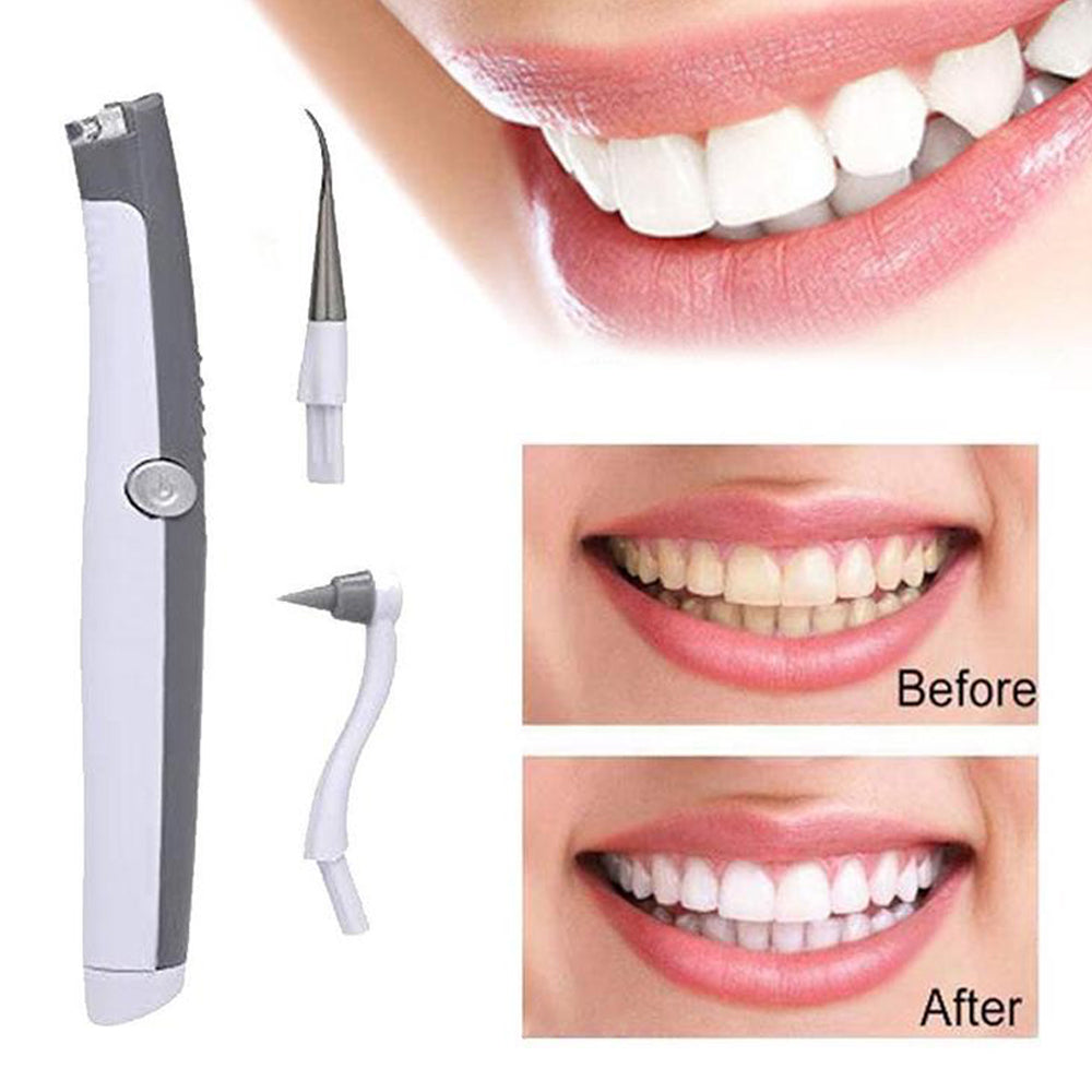 Electric Ultrasonic Tooth Stain Eraser 1