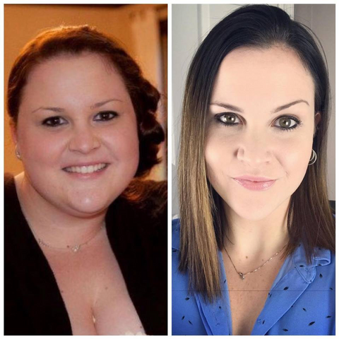Kimberly H Before & After Gastric Sleeve