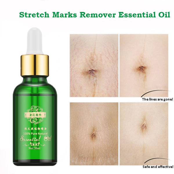 Stretch Marks Remover Essential Oil Skin Care Treatment