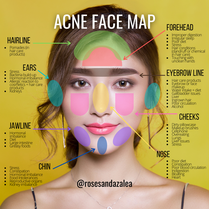 Face Mapping Your Acne