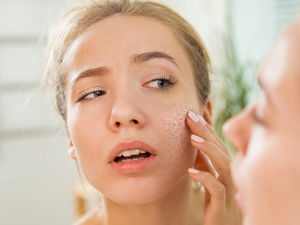 Your Dry Skin is at Risk...