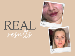 Real Results - My Skincare Journey