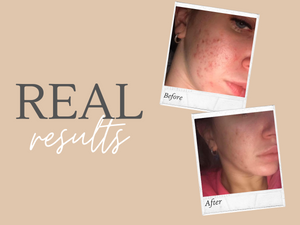 Real Results - Look at these results!
