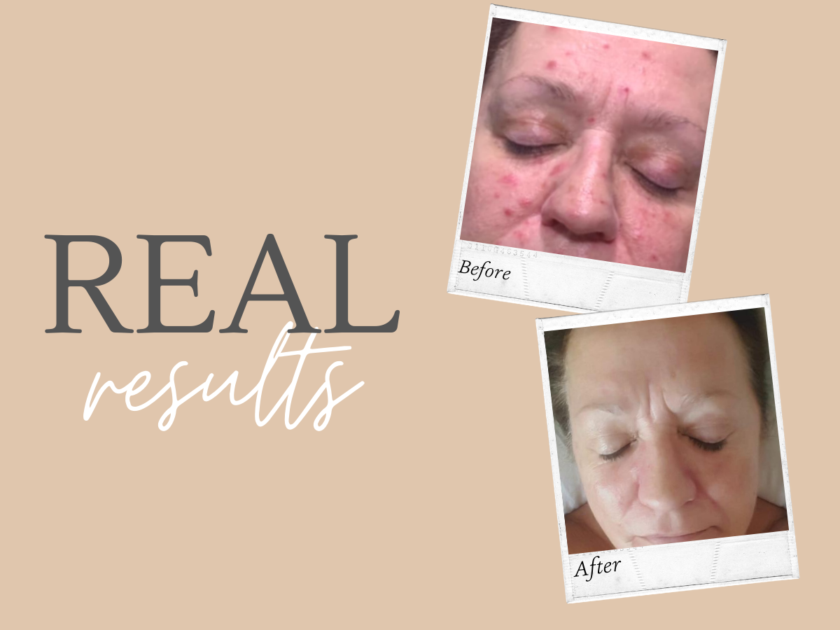 Real Results - Another skin transformation