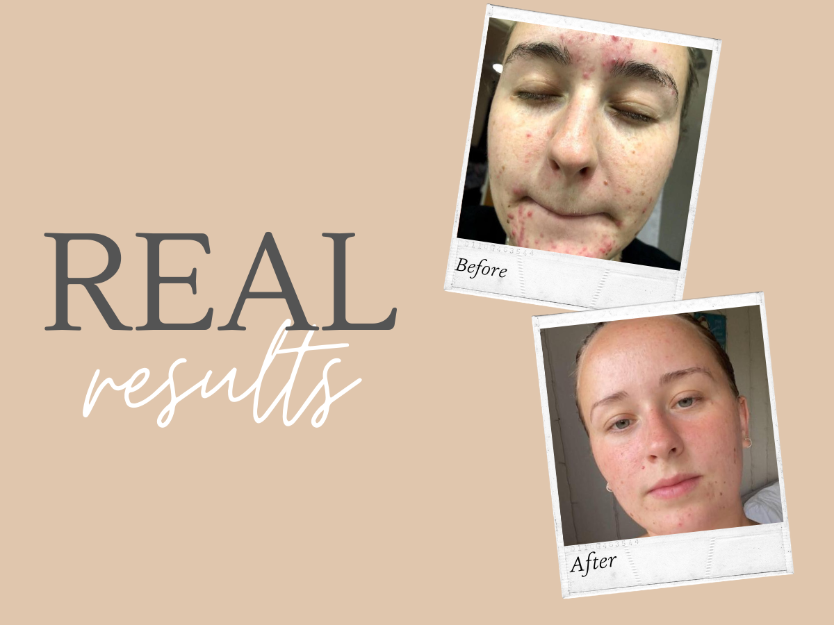 Real Results - WOW look at this transformation!