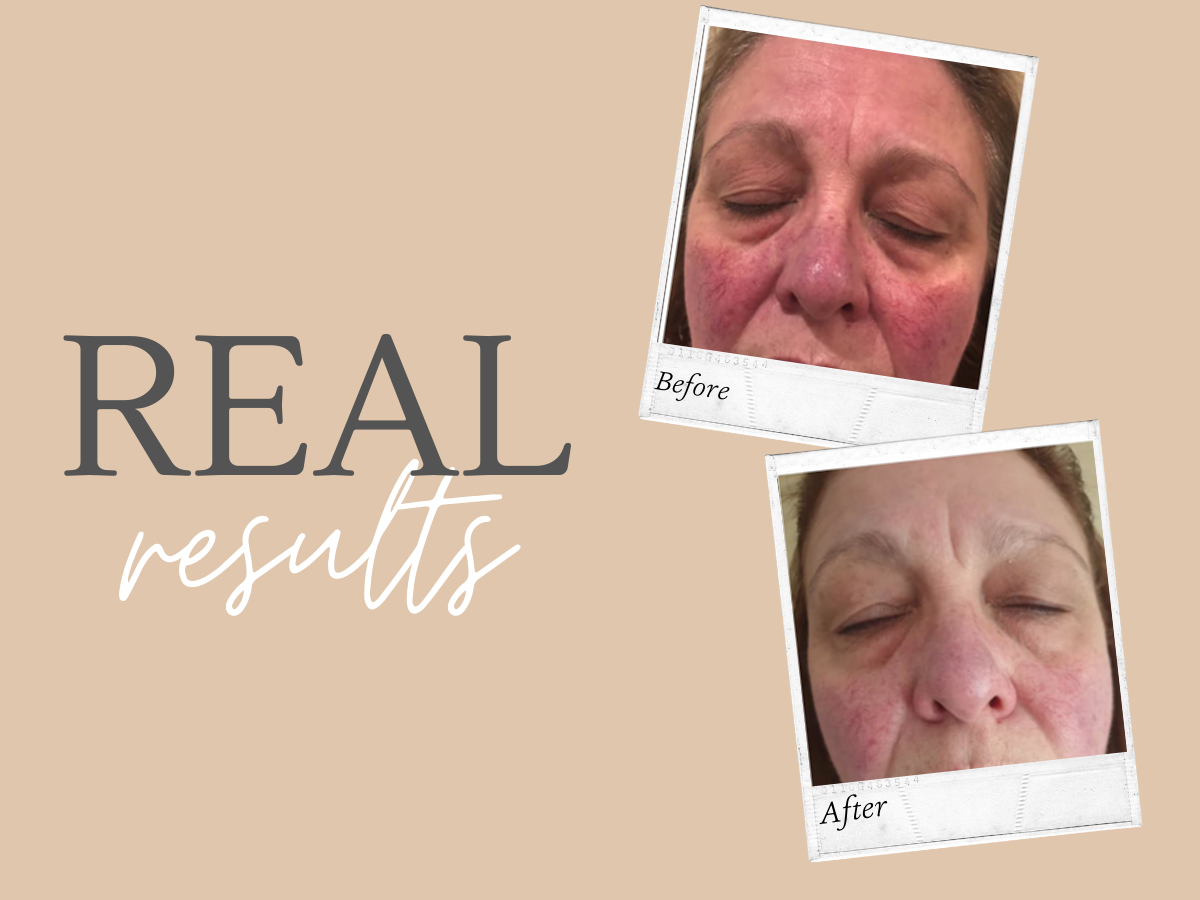 Real Results - Skincare that changes lives