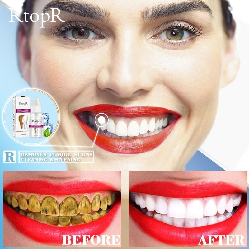 RtopR Cristal®- Clareador dental 3D Perfect Whitening - Onetechbrasil