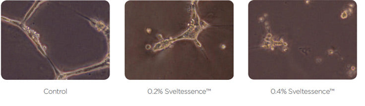 Flawless Canada Sveltessence fat cell growth reduction images laboratory tests