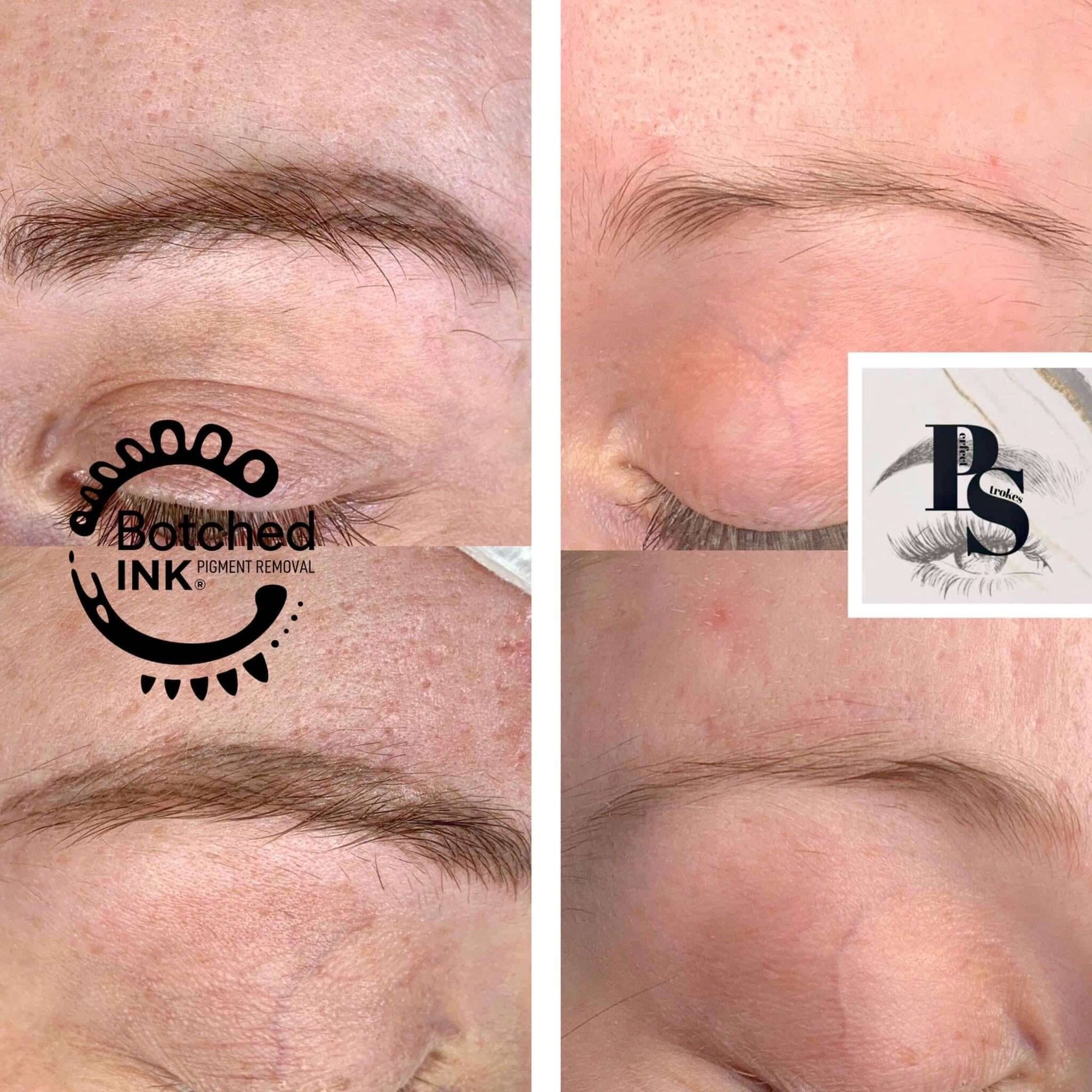Botched Ink emergency saline tattoo removal lift correct improve bad microblading permanent makeup eyebrow tattoo brow training online zoom webinar model