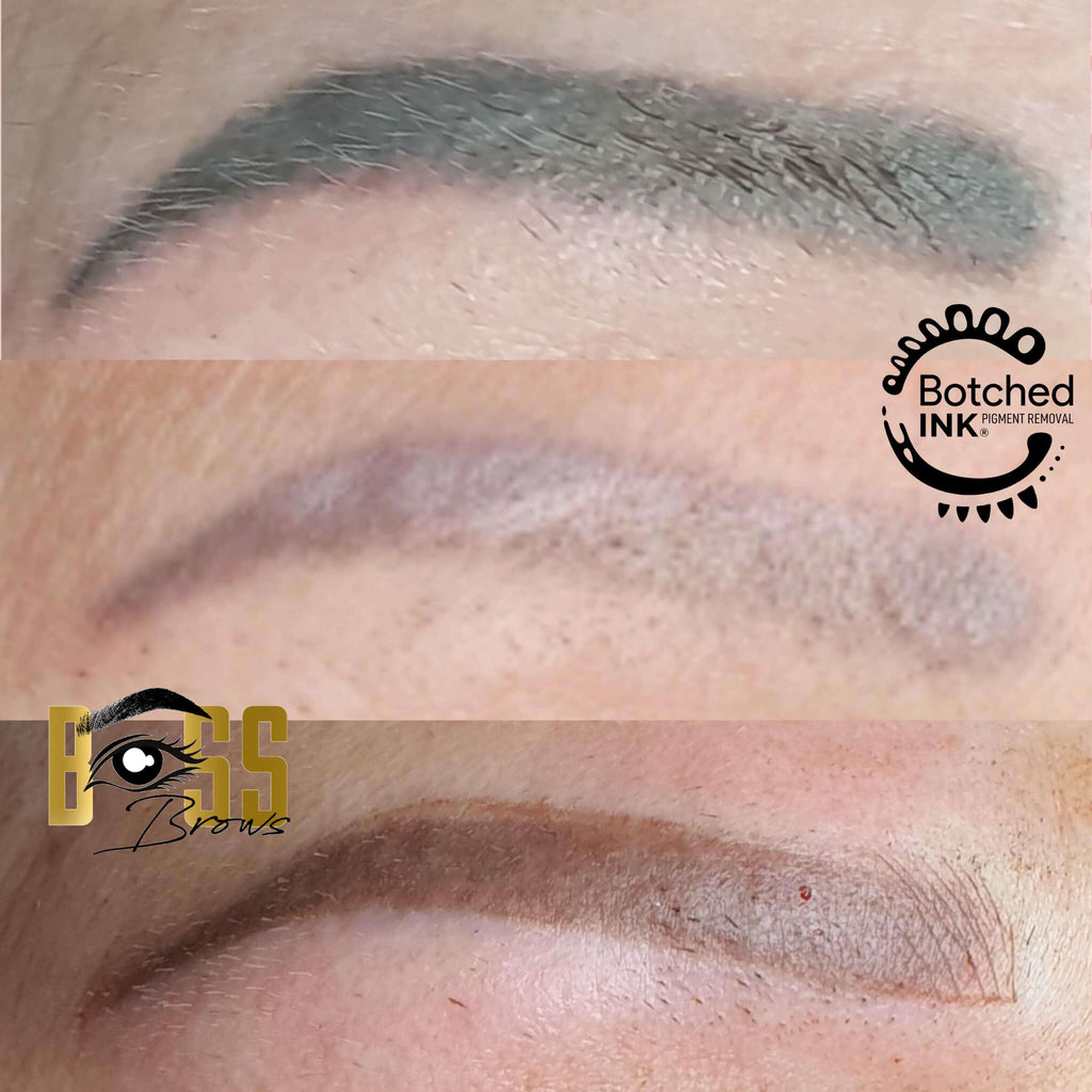 Botched Ink saline tattoo removal dark grey eyebrows fix correct microblading permanent makeup