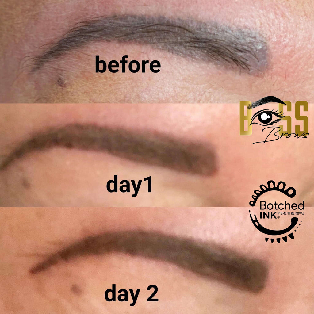 Botched Ink saline tattoo removal before and after microblading permanent makeup fix correct