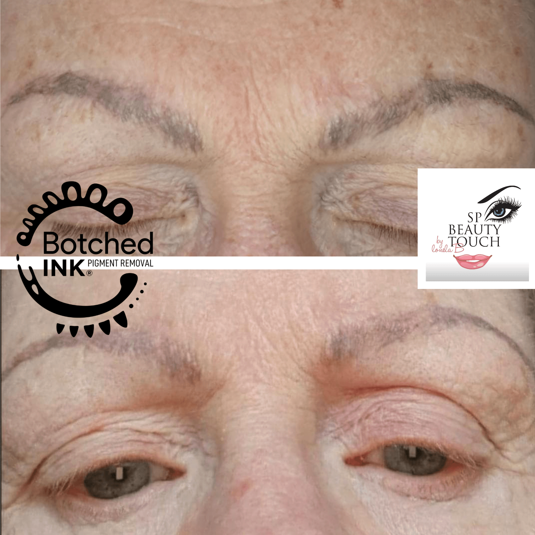Botched Ink® saline tattoo removal before and after photos microblading, eyebrow tattoo, permanent makeup
