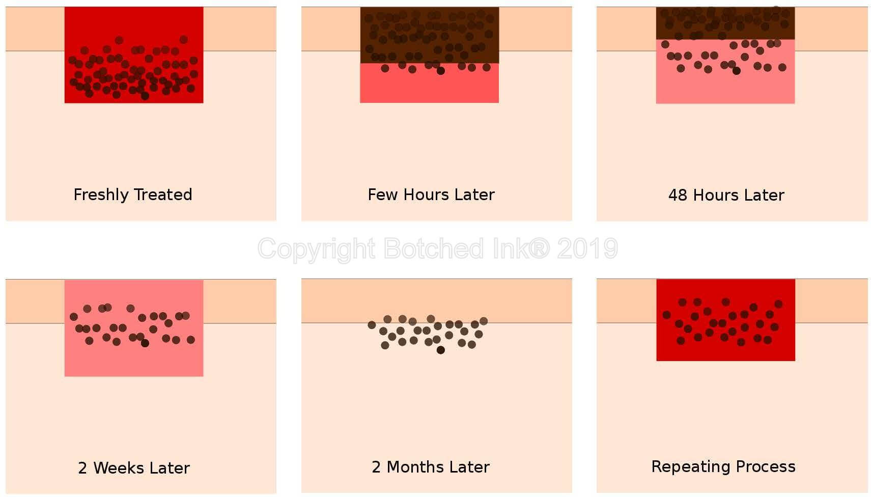 Botched Ink® saline tattoo removal process and healing