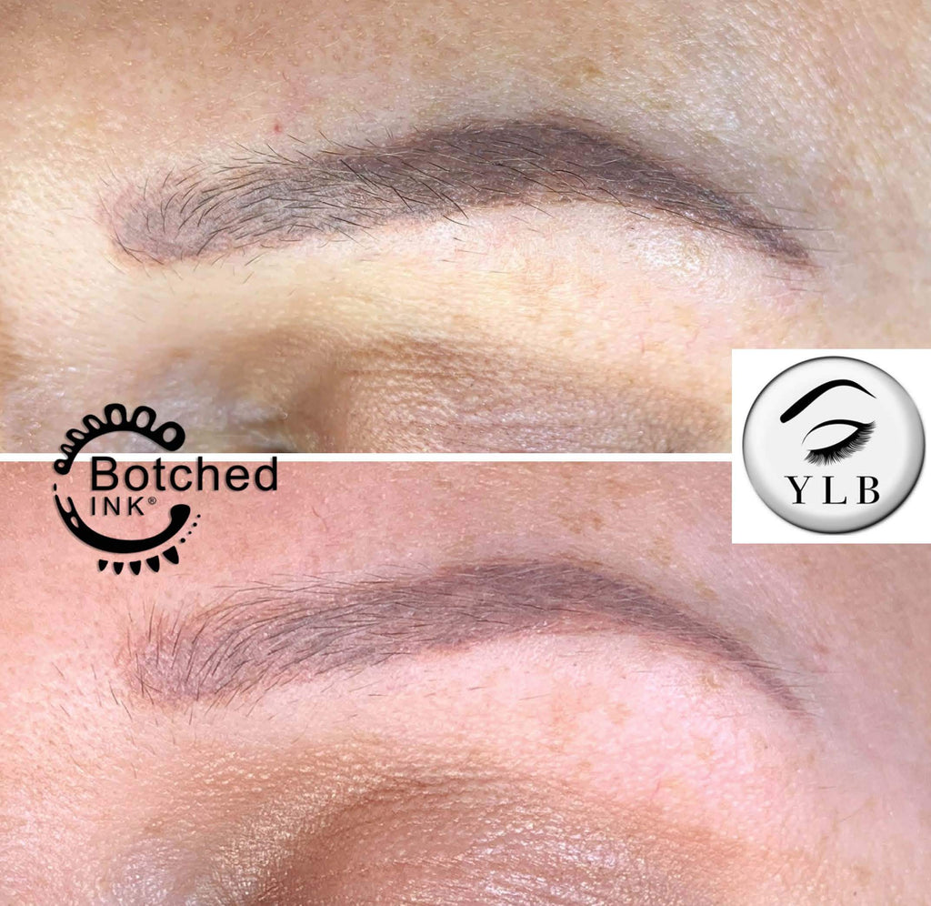 Botched Ink® saline tattoo removal solution training results before and after