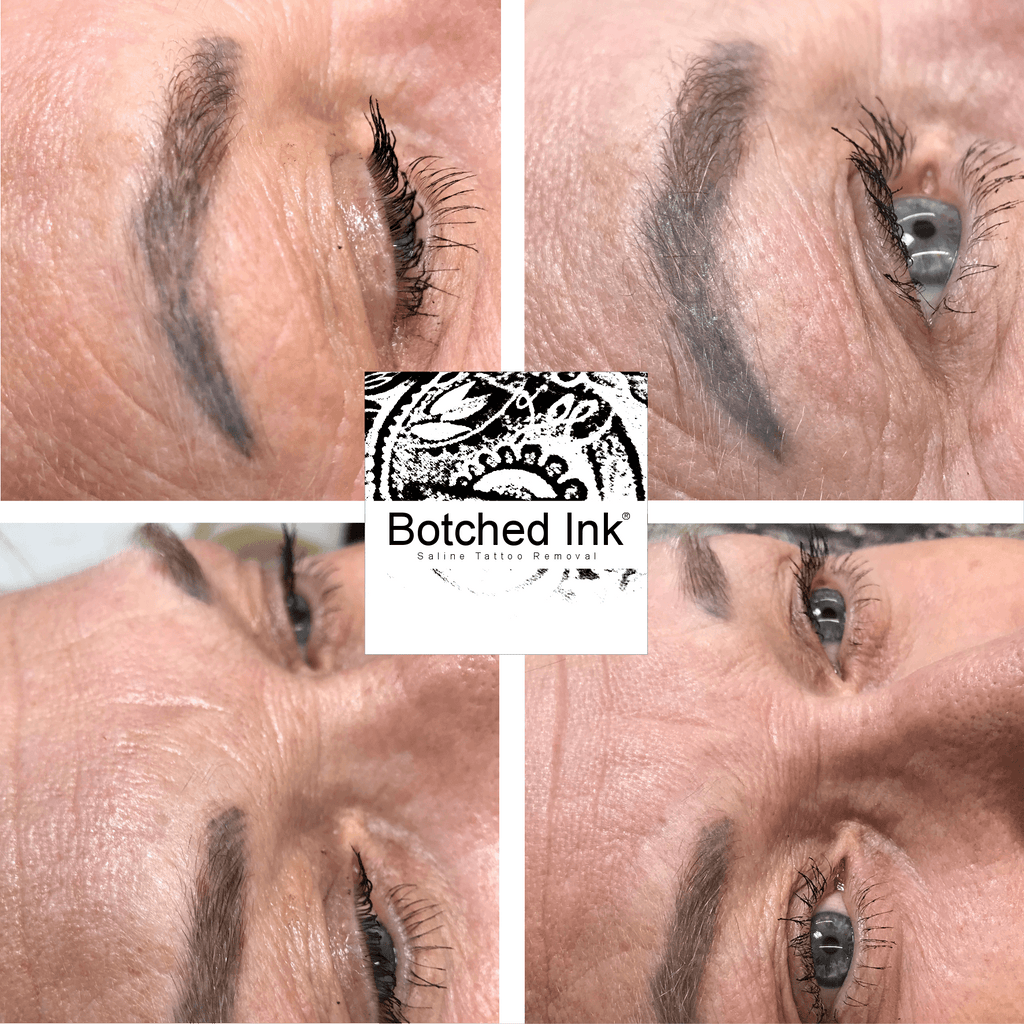 Botched Ink® saline tattoo removal get rid of microblading eyebrow tattoo