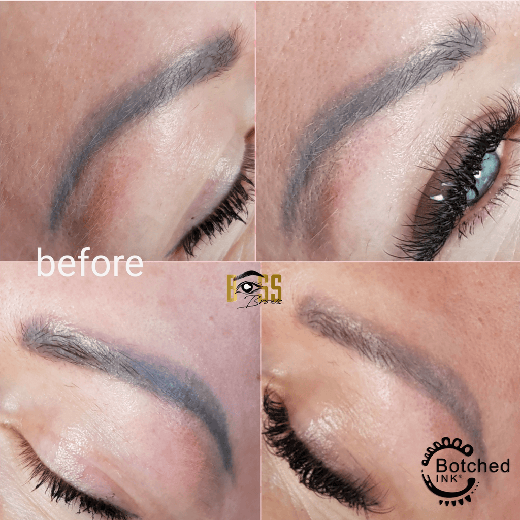 Botched Ink® saline tattoo removal results before and after