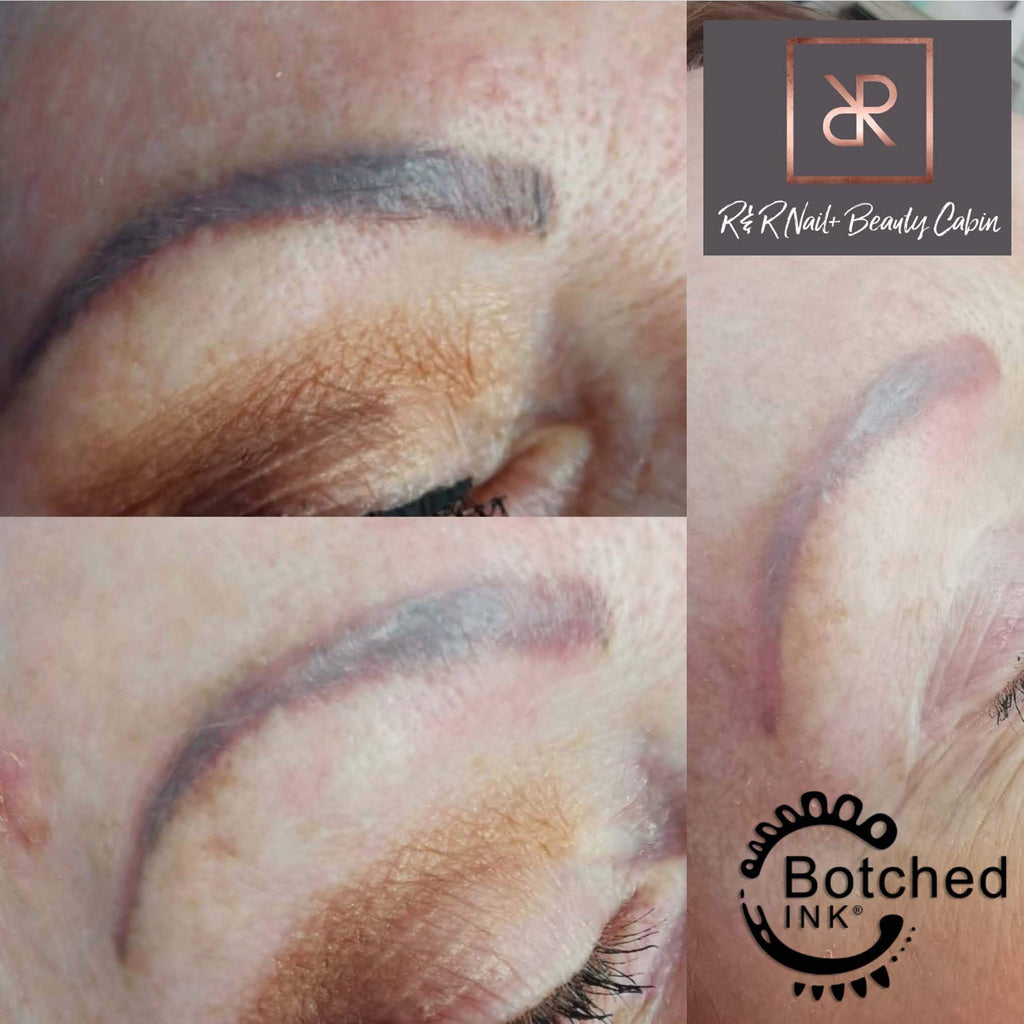 Botched Ink® saline tattoo removal training results before & after