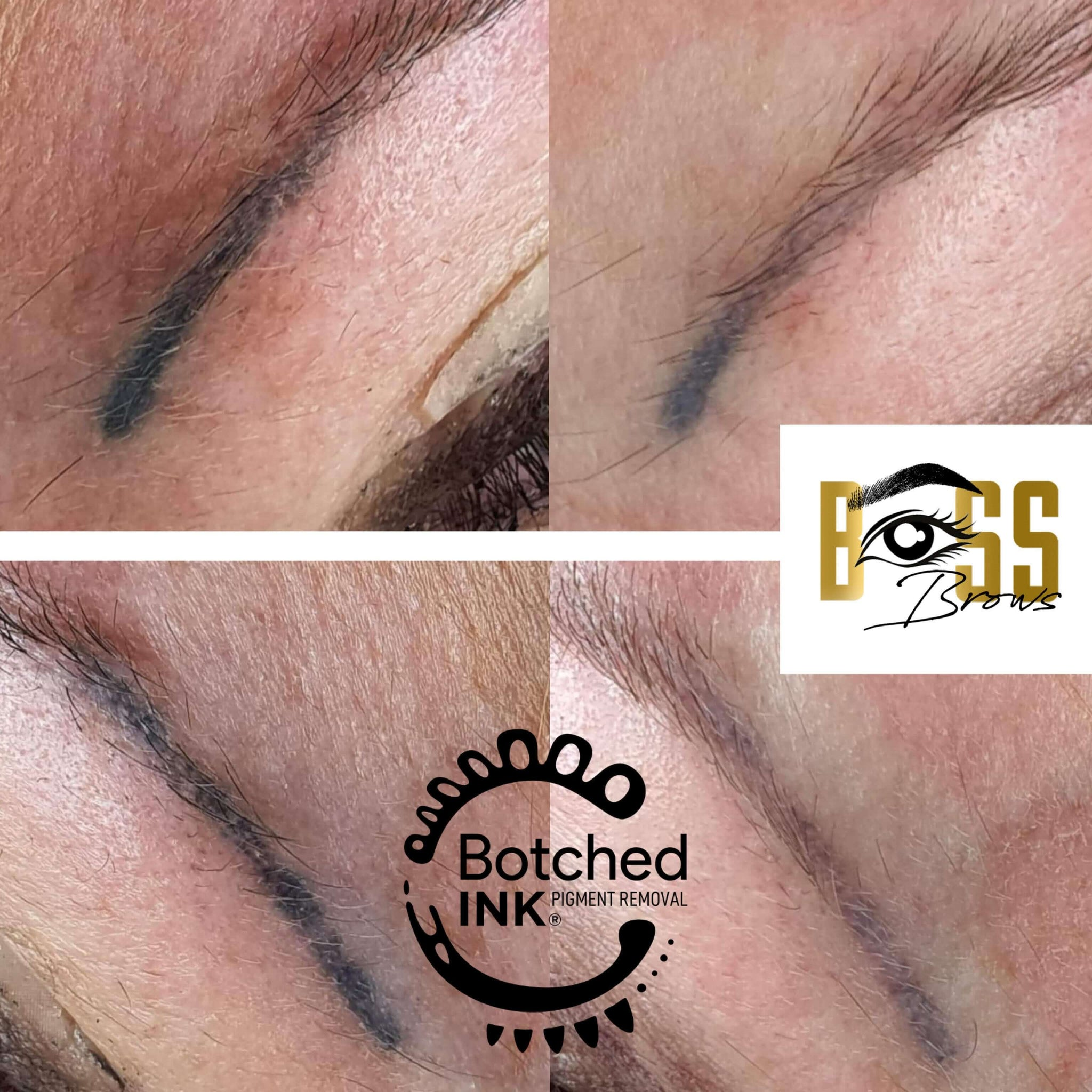 Botched Ink saline tattoo removal results before and after