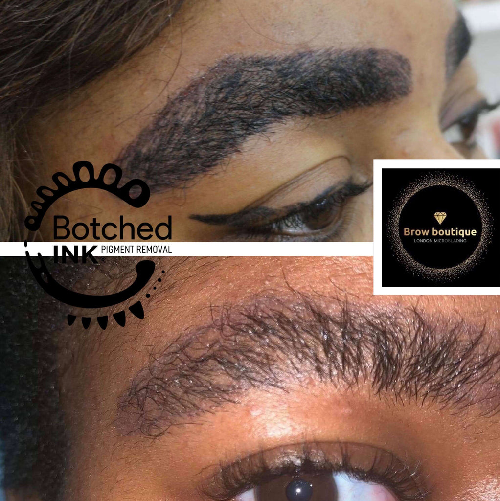 Botched Ink saline tattoo removal solution emergency removal microblading