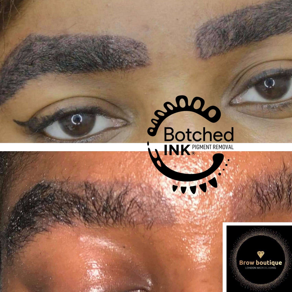 Botched Ink saline tattoo removal emergency get rid correct microblading permanent makeup