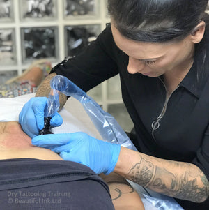 Dry Tattooing - Improving Scars & Stretch Marks (UK) - Botched Ink®