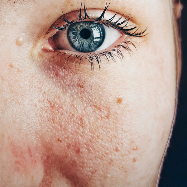Enlarged pores? Blackheads? Reduce and remove them with these simple steps
