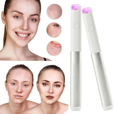 Compact Laser Acne Removal Pen Treatment Face Laser Therapy Acne Pen Scar Blemish Skin Rejuvenation Therapy Scar Wrinkle Removal