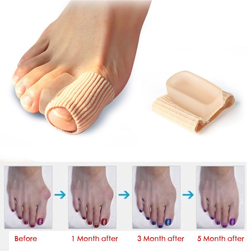 Orthotics Feet Bone Thumb Adjuster