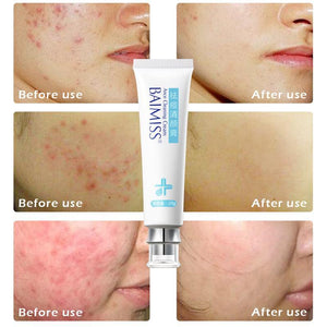 Anti-Folliculitis Cream - 70%OFF