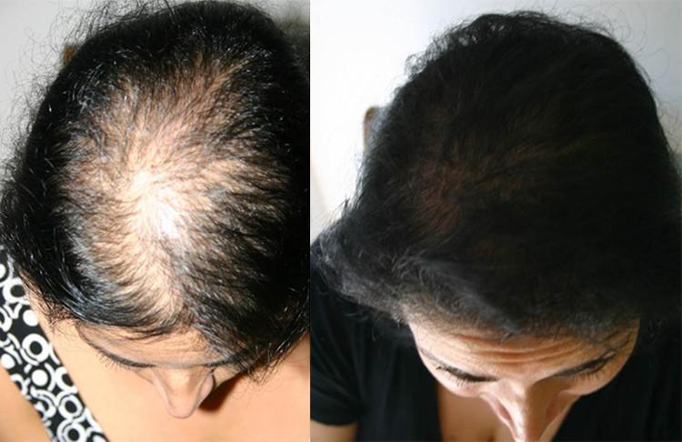 Beauty Hair Growth Essences - 70%OFF!