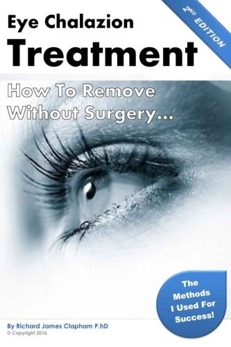 Eye Chalazion: How To Remove Without Surgery: My Personal Experience And The Methods I Used For Success (Chalazions, Styes, Cysts: Eye Treatment At Home Without Surgery) (Volume 1)