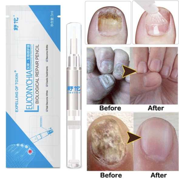 Anti-Fungal Nail Repair Pen