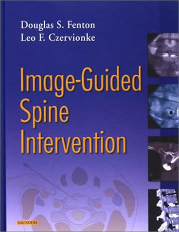 Image-Guided Spine Intervention, 1E