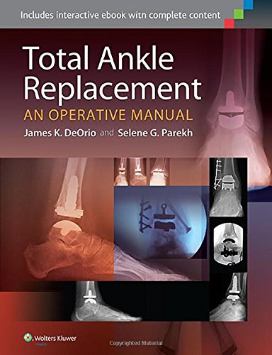 Total Ankle Replacement: An Operative Manual