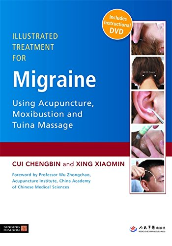 Illustrated Treatment For Migraine Using Acupuncture, Moxibustion And Tuina Massage