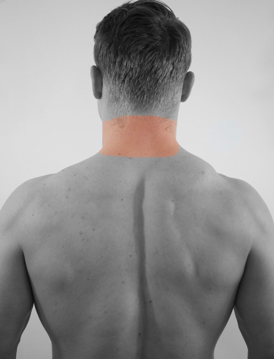 Back of Neck Laser Hair Removal (M)