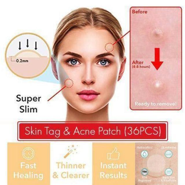 ShockCart  Skin Tag & Acne Patch