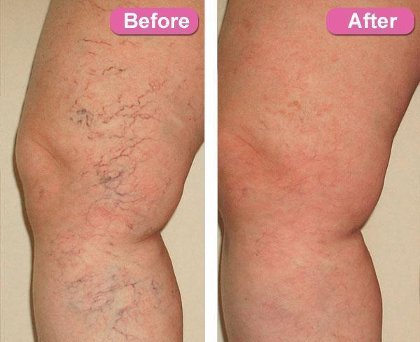 ShockCart 1 VECRATIS™ VECRATIS™: Varicose Veins Treatment Cream