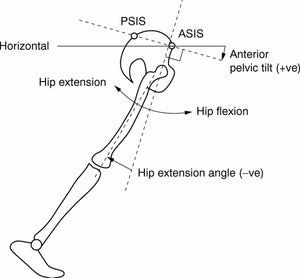 Everything You Need To Know About Anterior Pelvic Tilt
