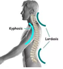 What is Hyperlordosis? (Arched Back)