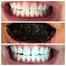Load image into Gallery viewer, Charcoal Activated Tooth Whitening Powder By Quickly White™