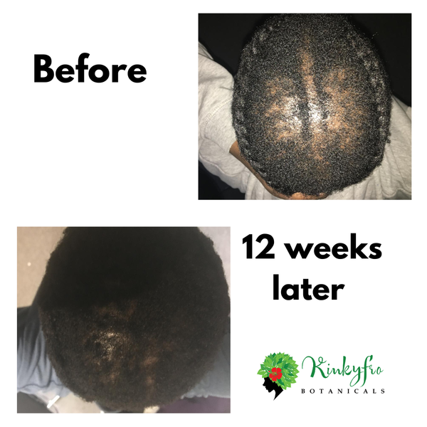"12 Week Update ""Operation Grow Your Hair Back'"