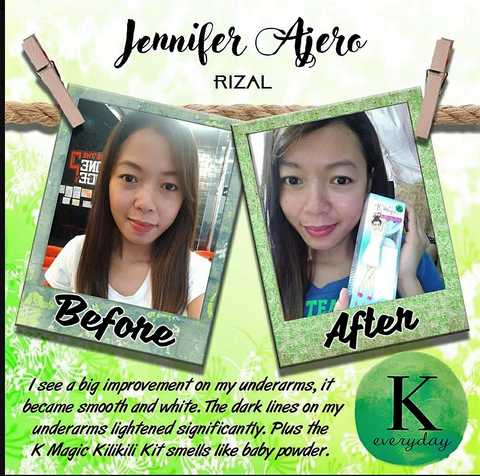 "Jennifer Arceo, Antipolo "" I see a big improvement on my underarms, it became smooth and white. The dark lines on my underarms lightened significantly. Plus the K Magic Kili kili kit smells like baby powder.""  Thank you Ms. Korina Sanchez!"