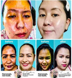 K Magic Multi-Functional Facial Skin Cream ( NOW in 2 sizes: 15 gms or 50 gms. )