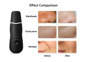 Blackhead Removal Exfoliating Pore Cleaner - haddishop