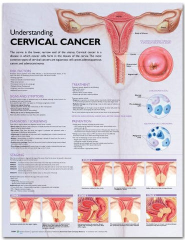 Understanding Cervical Cancer Anatomical Chart