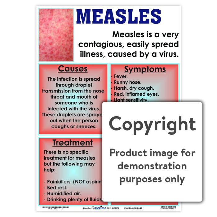 Measles Wall Charts And Posters