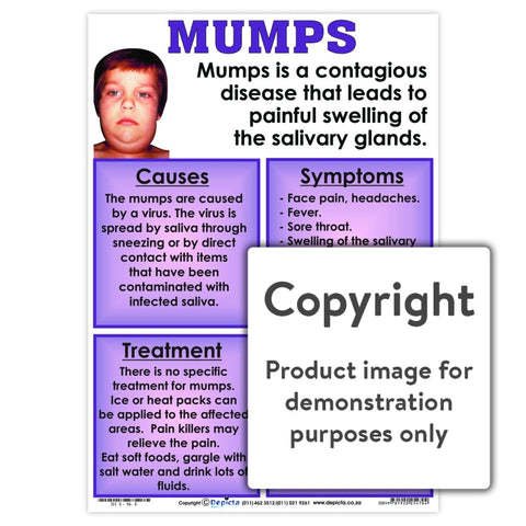 Mumps Wall Charts And Posters