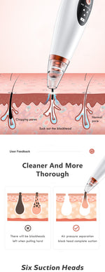 USB Rechargeable Blackhead Remover Face Pore Vacuum Skin Care - systematicshop.com